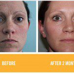 RODAN & FIELDS REVIEW & SKINCARE GIVEAWAY