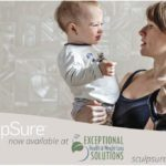 Exceptional Health & Weight Loss Solutions: SculpSure | Des Moines Moms Blog