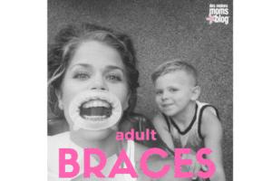 adult braces | des moines moms blog